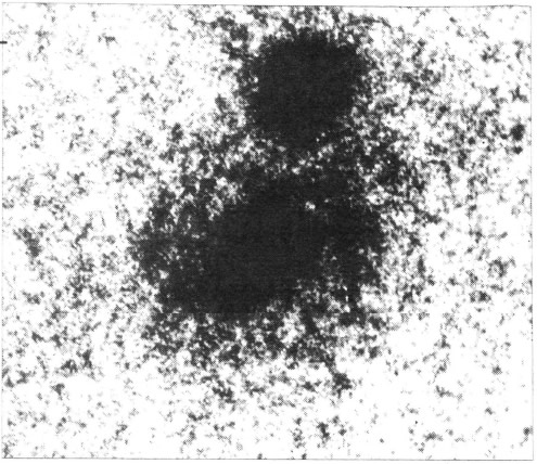 Вспышка сверхновой (негатив)